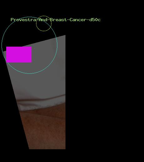 Provestra And Breast Cancer